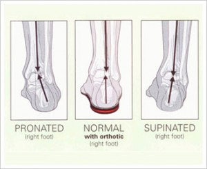 overpronation and oversupination