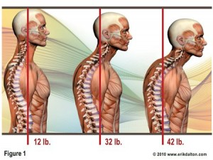 forward head posture puts more load on the back